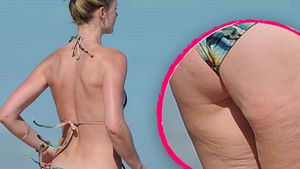 "Dieses ""Victoria's Secret""-Model hat Cellulite"