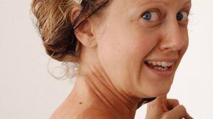 Barbara Schöneberger mit fleckigem Rücken