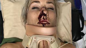 Horror-Bilder: BMX-Weltmeisterin zeigt Unfall-Verletzungen