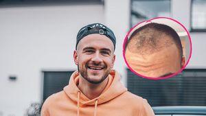 Nach Haartransplantation: Daniel Gielniak gibt ein Update