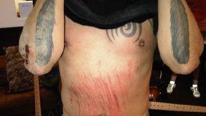 Schock: Dave Grohl zieht sich Rippenbruch zu
