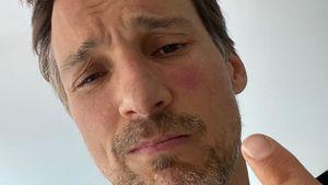 Aua! Florian David Fitz zeigt fiesen Wespenstich im Gesicht