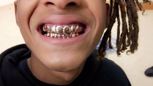 Hip Hop Hooray: Jaden Smith überrascht mit fetten Grillz