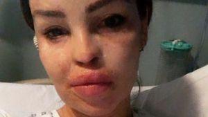 Böse Infektion: Säure-Opfer Katie Piper ist im Krankenhaus