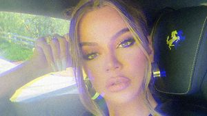 XXL-Duckface: War Khloé Kardashian wieder beim Beauty-Doc?