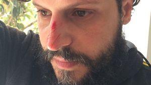 Übler Sturz ins neue Jahr: Manuel Cortez fällt Klippe runter