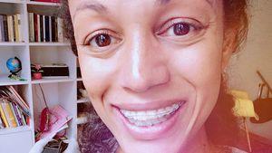 Mit 37 Jahren: Milka Loff Fernandes trägt eine Zahnspange!