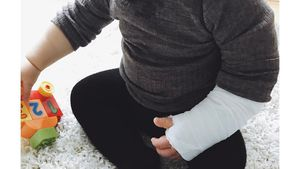 Baby Nicolas mit Gips am Arm