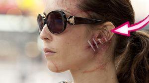 Blutig! Noomi Rapace' Gesicht ist schlimm verletzt