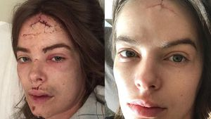 Blutiges Gesicht: Model Robyn Lawley stürzte Treppe hinunter