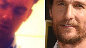 Nach Koma: Brite hält sich für Matthew McConaughey