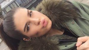 GNTM-Soraya: Hat sie Heidi Klum eine Lippen-OP verschwiegen?