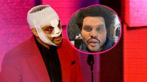 """The Weeknd erklärt sein """"Plastik-Gesicht"""" aus Musikvideo"""
