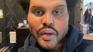Dieser Mann steckt hinter The Weeknds Gesichtsveränderung