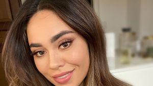 Bachelorette Melissa klärt auf: Hatte sie eine Nasen-OP?