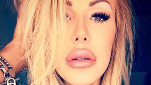 Zu viel des Guten? Vivien Konca mit Schlauchboot-Lippen