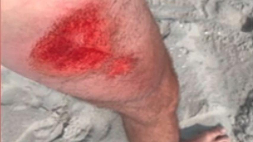 Alexander Hindersmanns Verletzung vom Kitesurfen