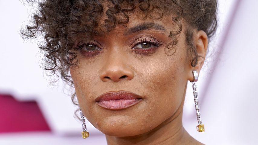 Vulgär: Diese Schauspielerin wurde bei den Oscars zensiert
