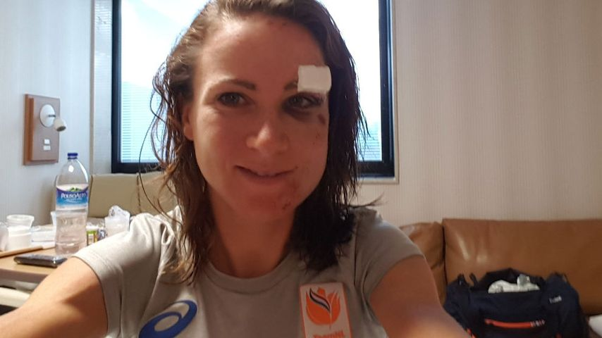 Nach Horror-Unfall: So lädiert sieht Olympia-Radfahrerin aus