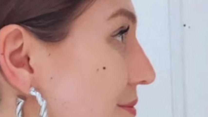 Bibi Claßen nach ihren Nasen-OP