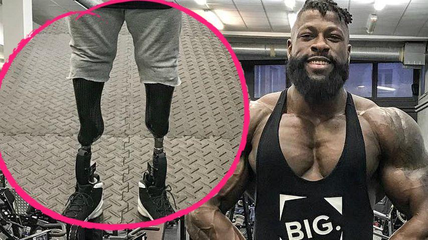 """Mit Bein-Prothesen: So wurde """"Bionic""""-Edgard zum Bodybuilder"""