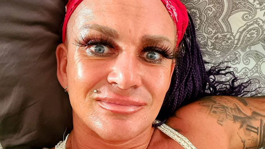 Sommerhaus-Star Caro Robens ließ sich die Nase operieren