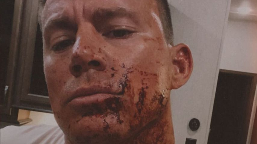 Blutverschmiert: Was ist hier mit Channing Tatum passiert?