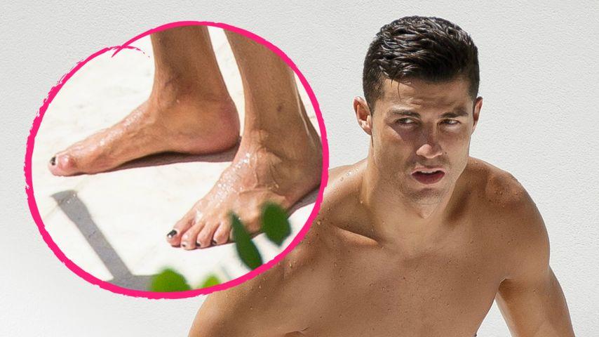 Schwarze Fußnägel: Was ist denn bei Cristiano Ronaldo los?