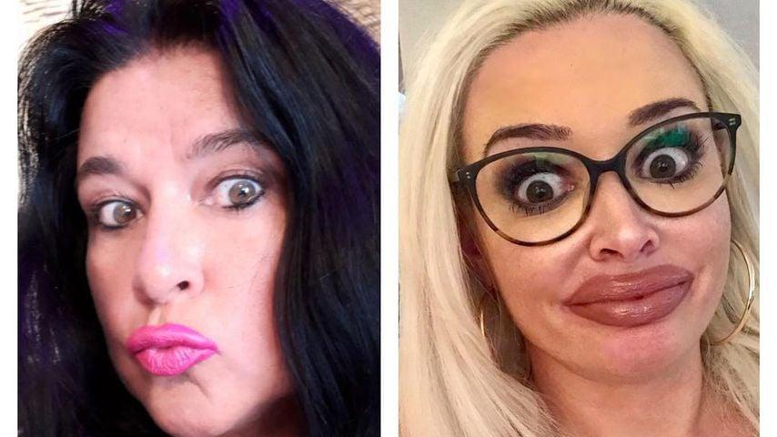 Danielas Fake-Lippen: Jetzt zieht auch Mama Iris nach!
