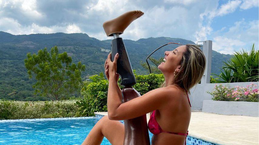 Miss Colombia: Daniella Alvarez tanzt trotz Bein-Amputation