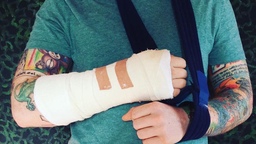 Konzerte abgesagt: Ed Sheeran hat sich mehrere Knochen gebrochen!