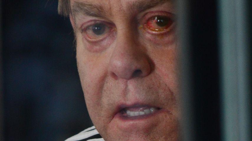 Ohne Brille: Elton John schockt mit Aua-Auge!