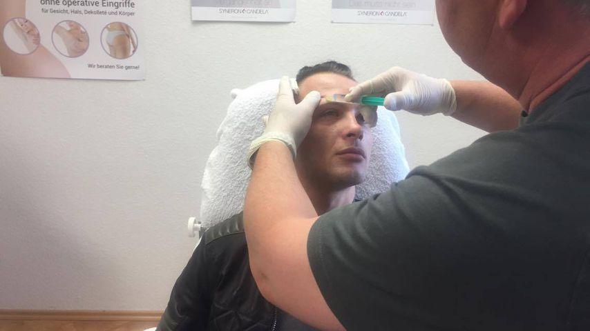 """Krasser Schmerz! """"Supertalent""""-Emil ließ sich Botox spritzen"""
