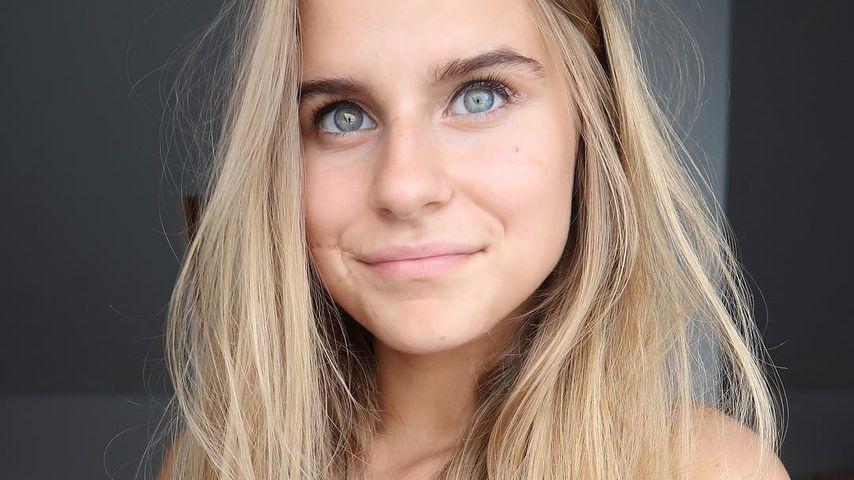 Gesicht zerfetzt: YouTuberin ist trotzdem Katzenliebhaberin