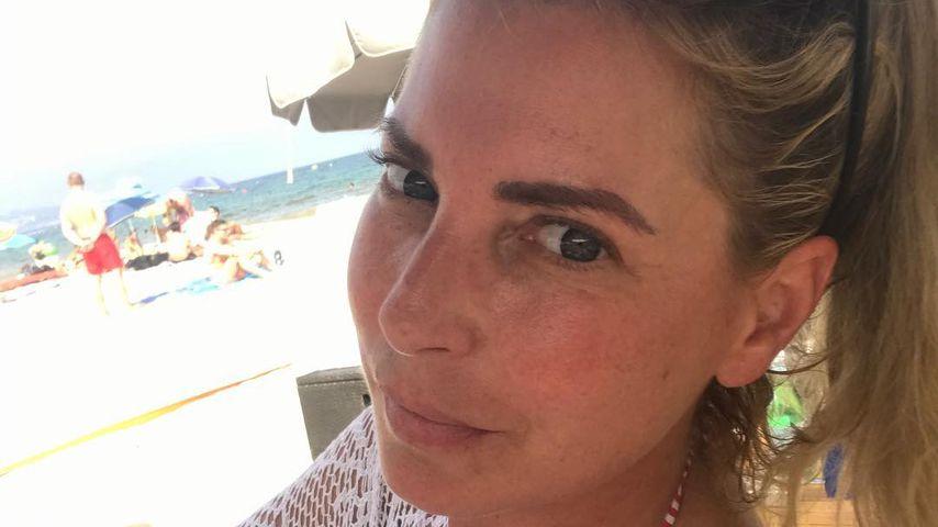 Schock für Giulia Siegel: Gebrochene Nase im RTL-Sommerhaus
