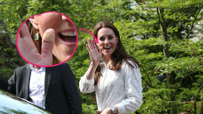 Warum trägt Herzogin Kate manchmal Pflaster an Fingern?