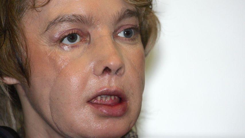 Isabelle Dinoir, erster Mensch mit transplantiertem Gesicht