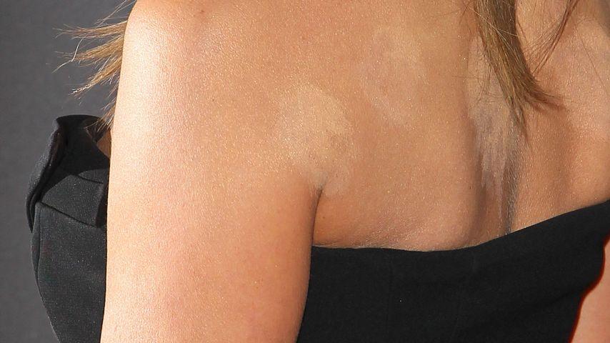 Flecken! Was hat Jennifer Aniston am Rücken?