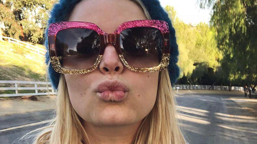 Echt? Jessica Simpson erntet Shitstorm – für trockene Lippen