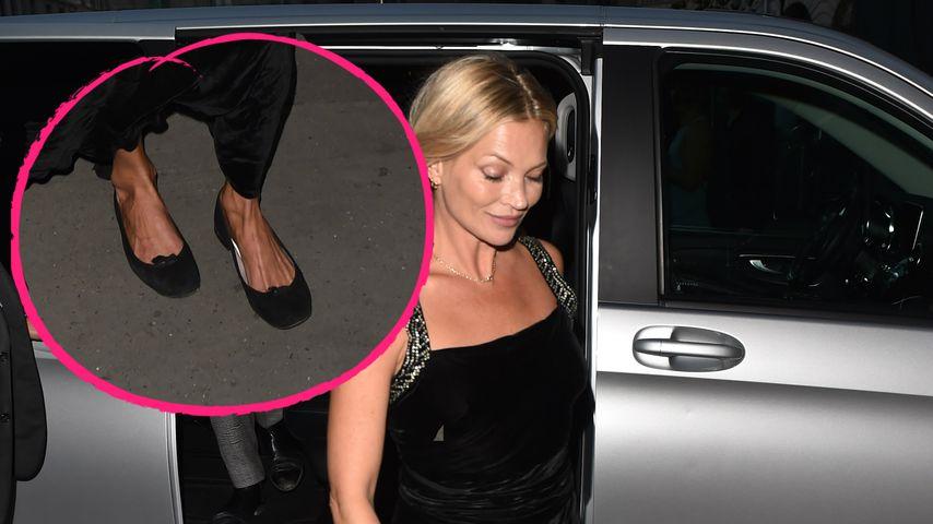 Beruhigend: Auch Stars wie Kate Moss und Co. haben Fuß-Makel