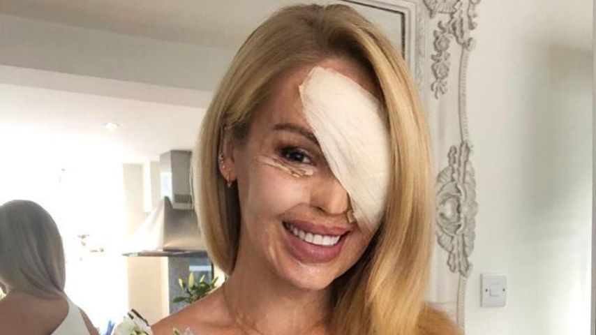 Nach OP: Säure-Opfer Katie Piper bekommt fiese Nachrichten
