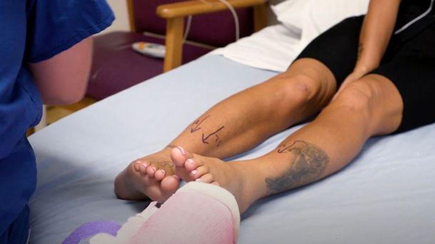 Katie Price' Füße vor der Operation