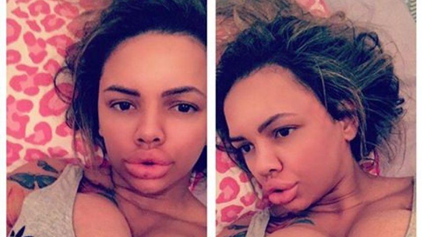 Kayla Morris' neue Lippen: Wie kann diese Frau noch essen?