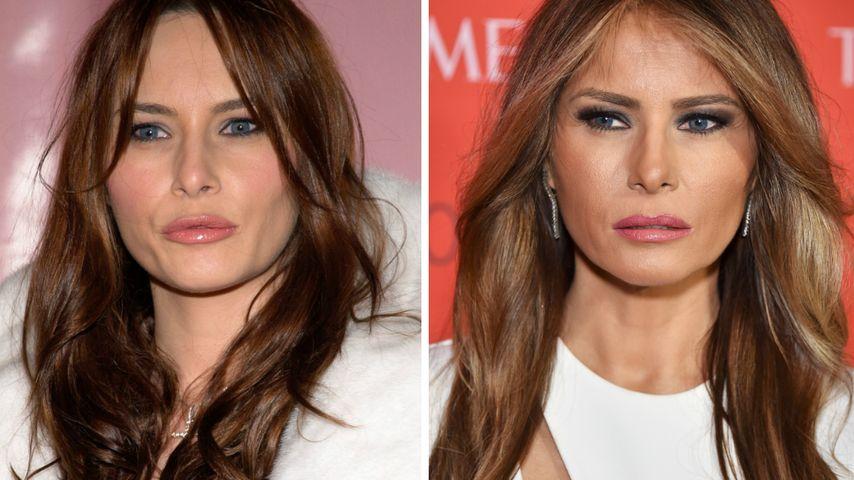 First Lady Melania Trump: Ist Botox ihr Beauty-Geheimnis?