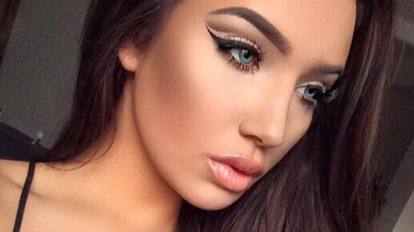 Neue Mini-Nase: Melody Haases Beauty-OP sorgt für Kritik