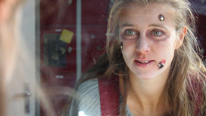 Pest-Beulen & Rotznase: Hättet ihr diese Frau erkannt?