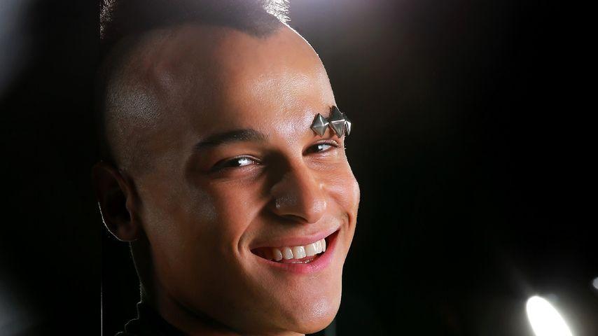 DSDS-Prince verrät: Das steckt hinter seinem Gesichtsschmuck