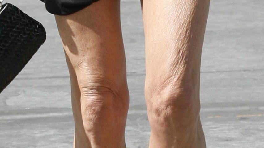 Der Star mit den faltigen Beinen ist...