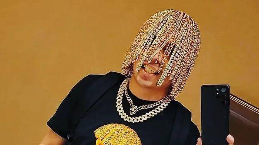 Irre! Rapper lässt sich Goldketten in Kopfhaut implantieren