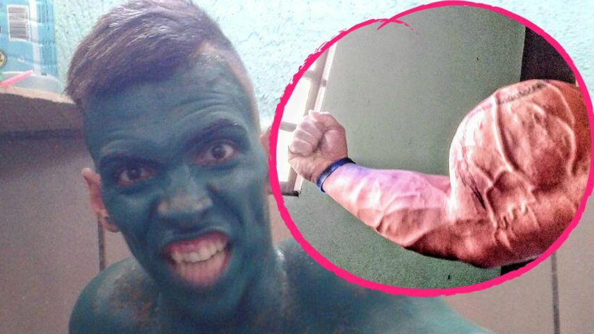 Skurriler Mucki-Body: Real-Life-Hulk verlor fast seinen Arm